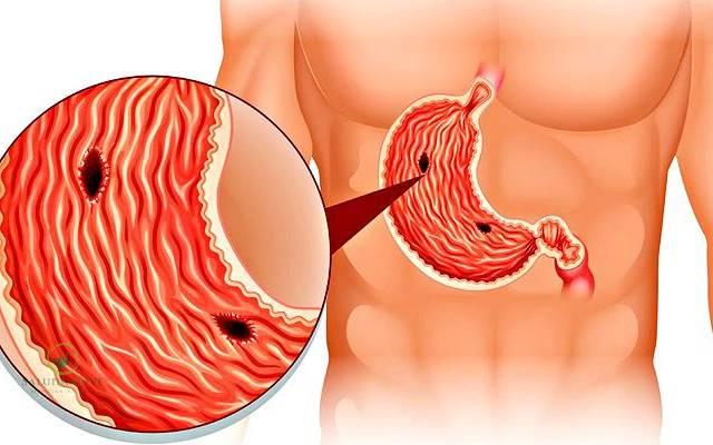 causas de la úlcera gástrica