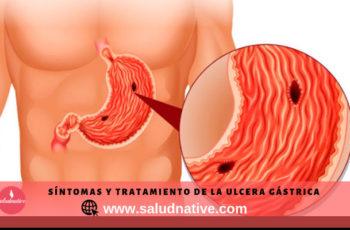 tratamiento para la ulcera gástrica
