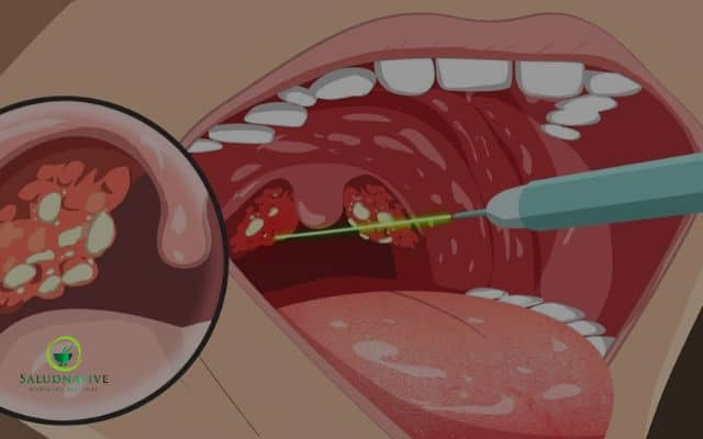 bolitas blancas en la garganta y dolor