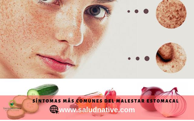 causas y tratamiento para manchas oscuras en la cara