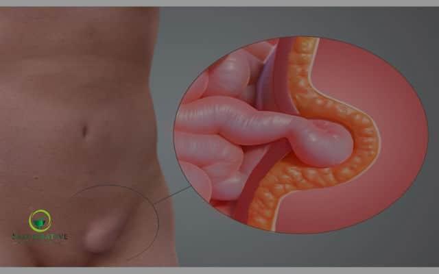 hernia inguinal causas