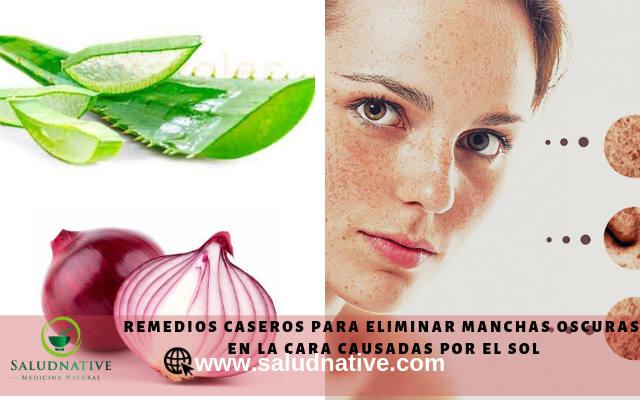 remedios caseros para eliminar manchas oscuras de la cara causadas por el sol