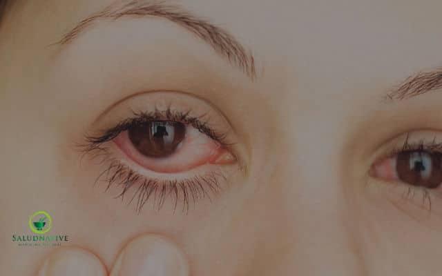 remedios caseros para quitar el aire en los ojos