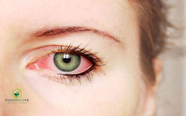 ojos inflamados
