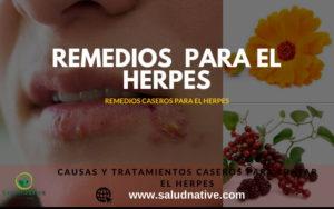 causas y tratamientos para el herpes