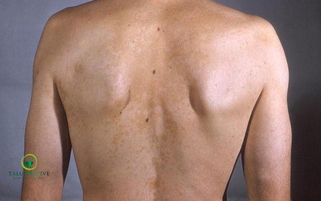 causas y tratamientos para manchas en la espalda