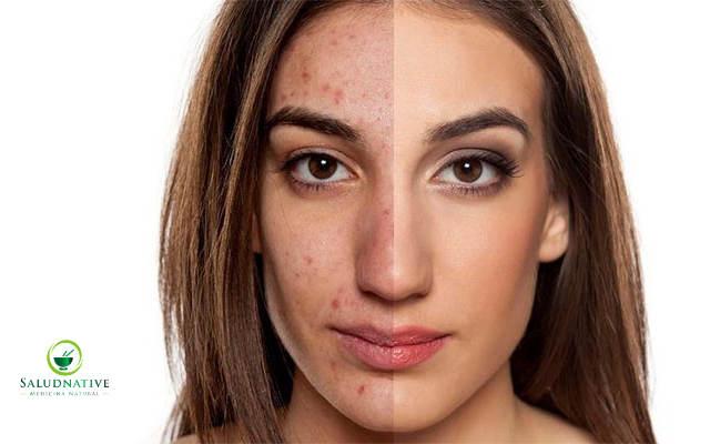 como eliminar las manchas de acne