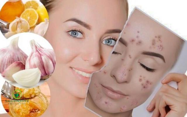 mascarilla de ajo y limon para manchas de acne