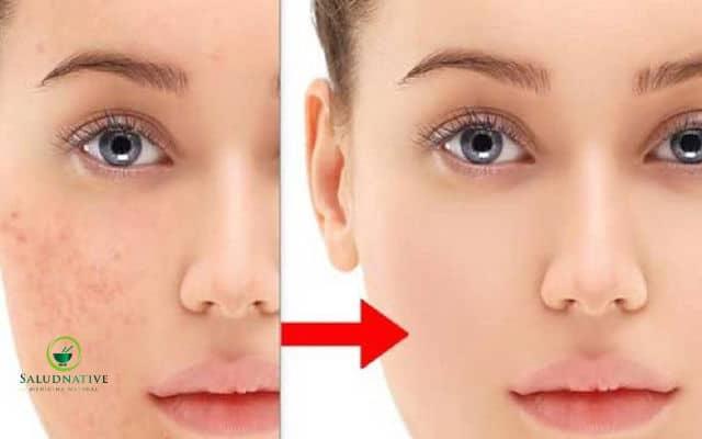 como blanquear la piel del rostro
