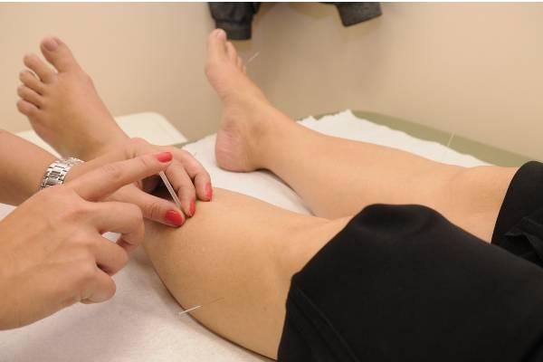 la acupuntura para mejorar la circulacion sanguinea