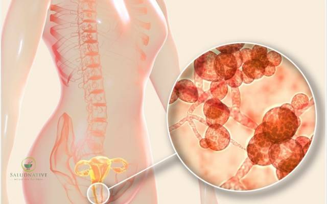 causas vulvovaginitis atrofica