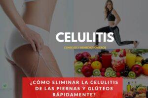 como eliminar las celulitis de las piernas rapido