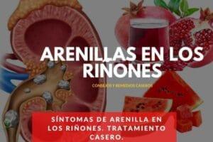 sintomas de arenillas en los riñones