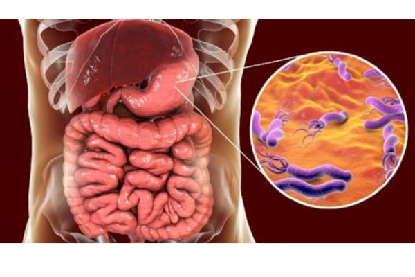 dietas y remedios para eliminar parasitos