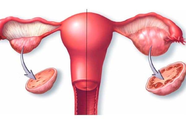 plantas medicinales para eliminar quistes en los ovarios